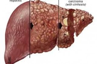 Epatite fatale da farmaci antimicotici