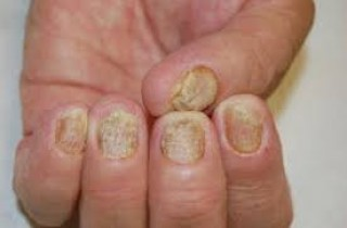 Psoriasi delle unghia