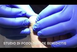 Embedded thumbnail for Correzione curvatura ungueale con barretta e filo di titanio