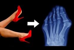 Embedded thumbnail for Effetti delle scarpe con tacco alto e punta stretta sul piede