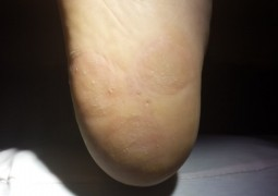Risoluzione verruche multiple del tallone