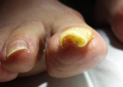 Unghia incarnita, onicocriptosi, ingrow toenail,unha encravada